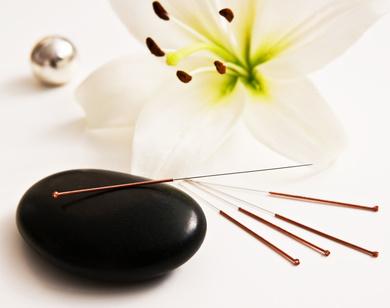 Akupunktur bei Heilpraktikerin Gabriele Waterstrat-Seibt